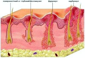 Фурункулы у ребенка: причины возникновения и лечение.