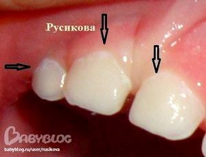 Кариес молочных зубов.