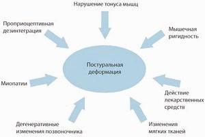 Одышка - сигнал о возможном развитии заболевания.