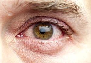 У ребенка блефарит глаз: признаки и лечение.