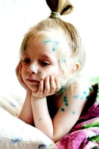Ветрянка у детей: способы заражения, симптомы, лечение
